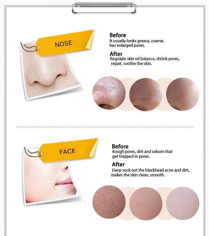 Blackhead Remover Peeling Peel Off Mask