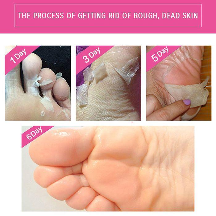 Removes Dead Skin AIVOYE Baby Foot Mask