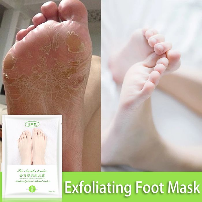 Natural Plant Exfoliating Foot Mask